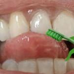 Mundhygiene mit der SWAK-Zahnbürste